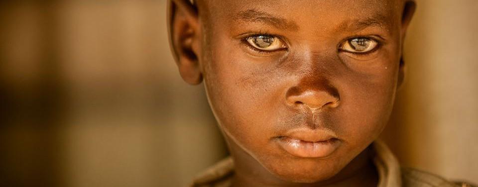 Cirugía en Turkana