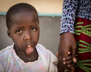 Mabel - Cirugía en Turkana 2015